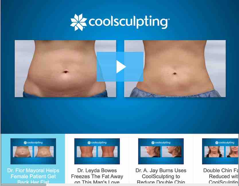 coolsculpting experience
