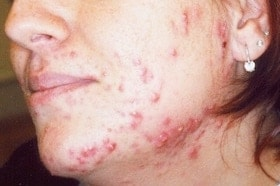 acne treatment results before