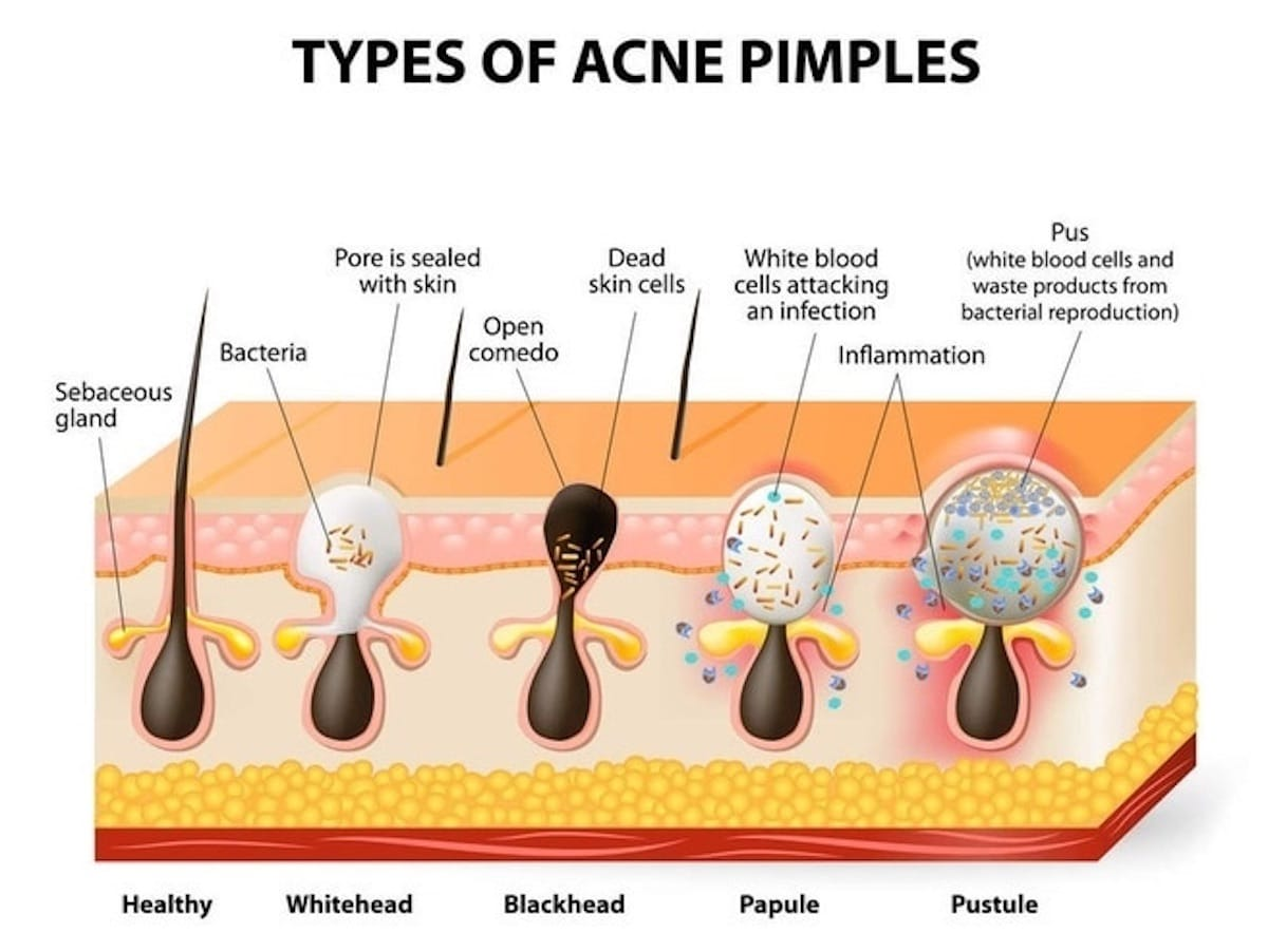 acne treatment tampa