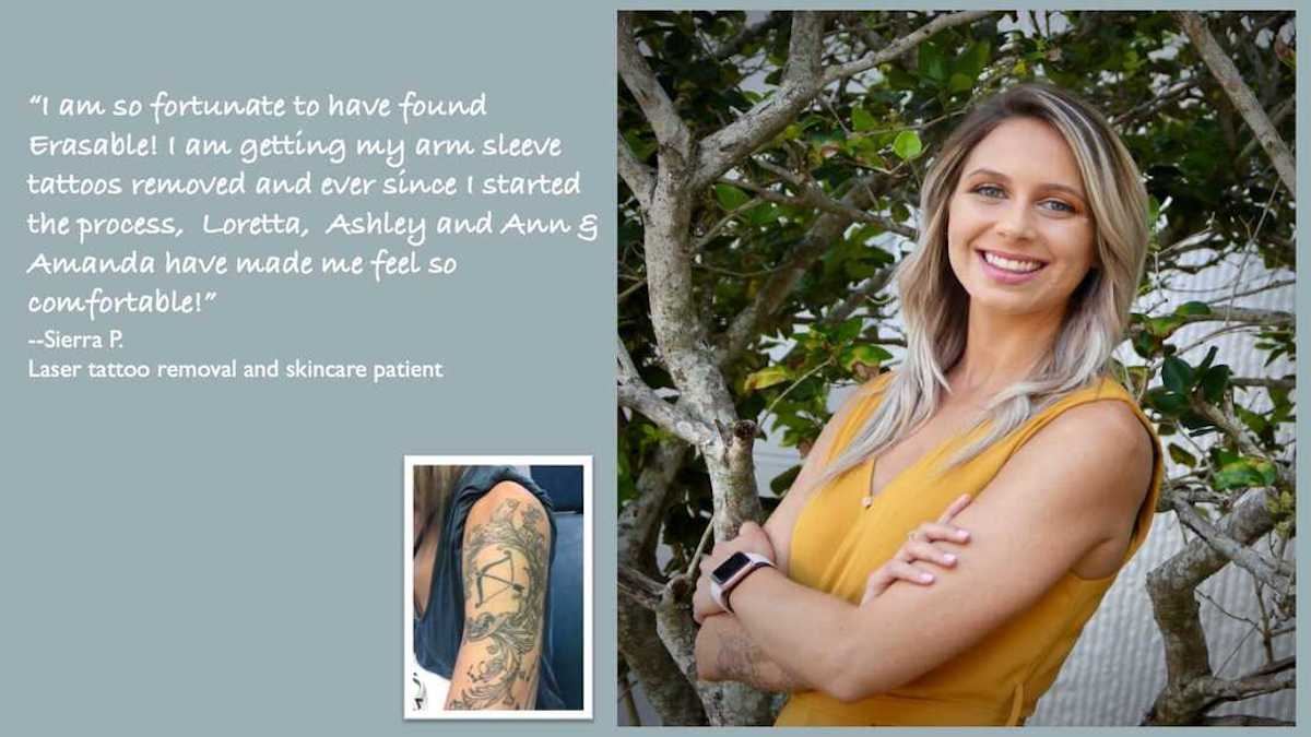 best tattoo removal review