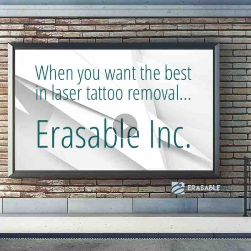 best tattoo removal video