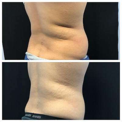 coolsculpting tampa hips-10