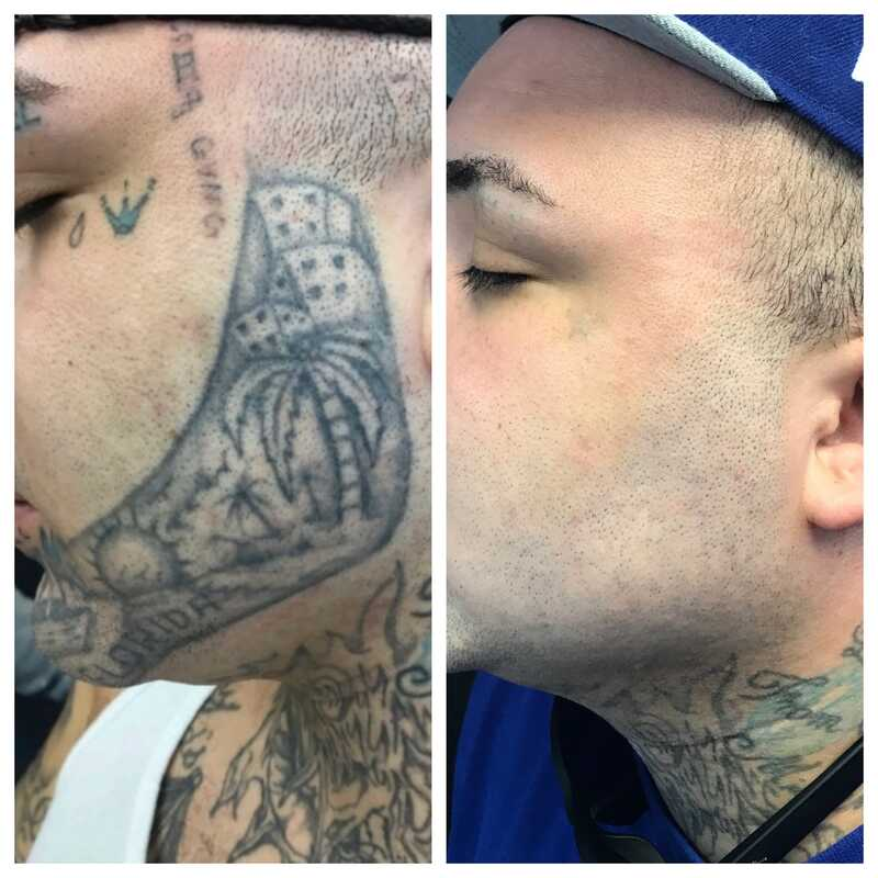 tattoo removal cheek