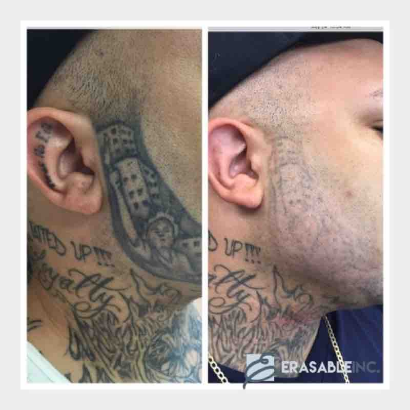 tattoo removal cheek right