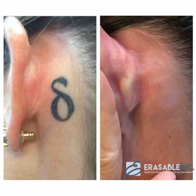 tattoo removal ear behind