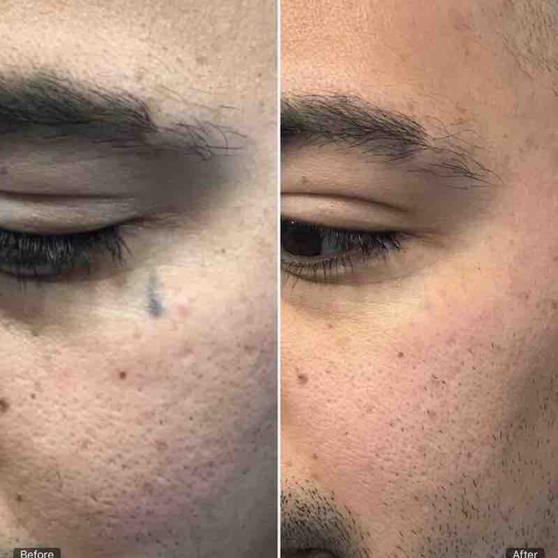 tattoo removal eye left