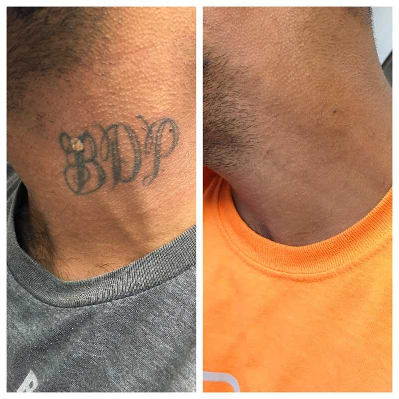 tattoo removal neck left