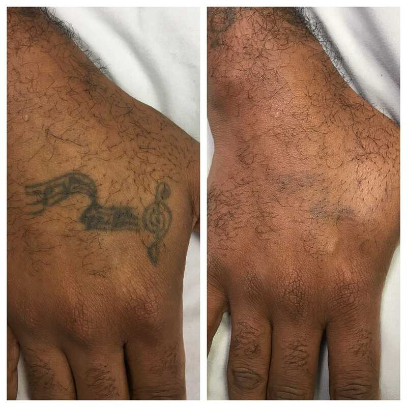 tattoo removal right hand