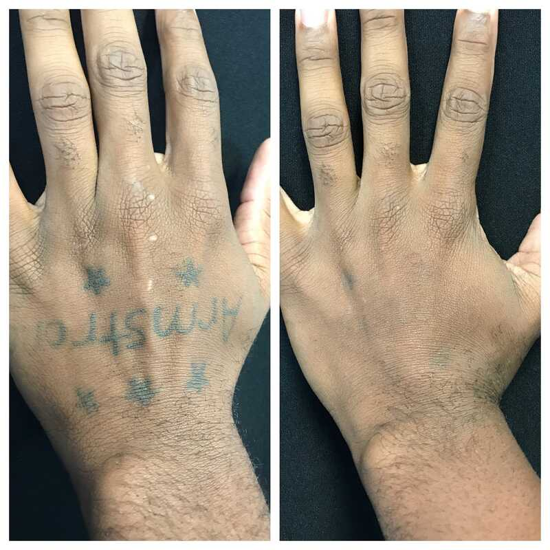 tattoo removal top of hand